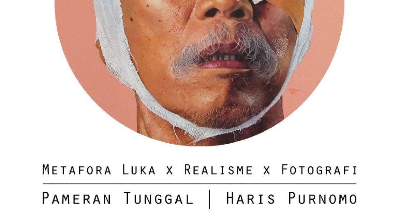 Metafora Luka, Realisme, dan Fotografi | Pameran Tunggal Haris Purnomo